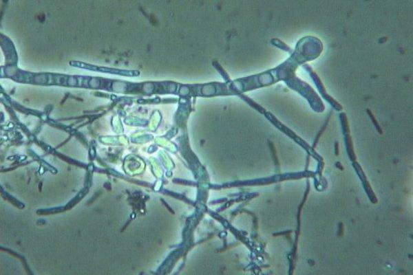Fungal Hyphae - Pic 2 - Microbe Organics.JPG